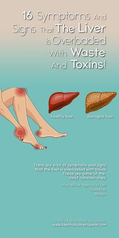 detox your liver - liver detox Liver Detox Symptoms, Fatty Liver Diet, Detox Your Liver, Liver Detox Cleanse, Healthy Liver, Gallbladder Symptoms, Body Cleanse, Alcohol Detox Symptoms, Liver Failure Symptoms