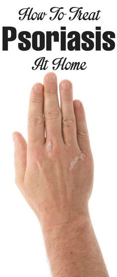 How To Treat Psoriasis At Home?
