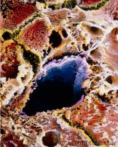 False-color scanning electron micrograph of liver cells with cirrhosis. Image by Professors P. Motta and T. Fujita.