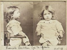 """He was arrested for 'nibbling all the pears from a basket'.""  1893 French Mug shot of François Bertillon Age: 23 months Crime: Gluttony"