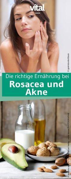 Die Behandlung von Akne und Rosacea erfordert viel Zeit. Mit der richtigen Ernährung könnt ihr eurer Haut helfen sich zu erholen. Wir sagen euch auf welche Produkte ihr lieber verzichten solltet und welche sich positiv auf die Haut auswirken.