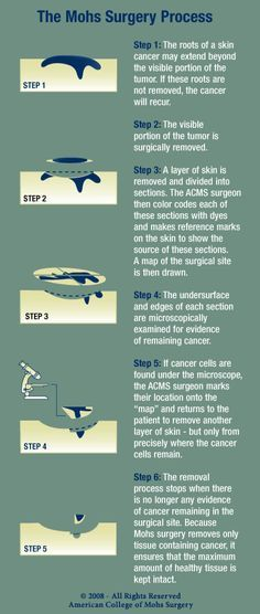 All about Mohs surgery for skin cancer. 99% effective and minimally invasive. Such valuable info! #skincancer #skincare