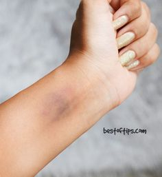 We all get minor burns, bumps and bruises at some or the other point of our lives. Minor bruises are common and you can treat it at home too! Bruises not only look bad but the [. Get Rid Of Bruise, Cystic Acne Essential Oil, Heal Bruises, Cystic Acne Remedies, How To Fade, Scar Removal Cream, Charcoal Teeth Whitening, Acne Spot Treatment, Health Remedies