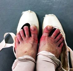 And you can never wear open-toed shoes in public, because people are grossed out by your nasty ballet feet.