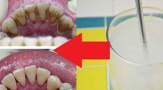Un dentist s-a dat de gol și i-a spus pacientului cu ce trebuie să-și clătească gura ca să scape de tartru Aloe Vera, Sausage, Health, Food, Health Care, Sausages, Essen, Meals, Yemek