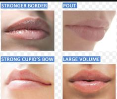Lip Filler Options