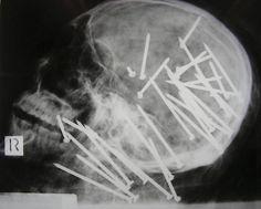 Yo necesito la radiografía.