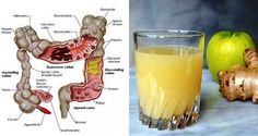 The 3 Juice Colon Cleanse: How Apple, Ginger and Lemon Can Flush Pounds of Toxins From Your Body Nowadays, individuals commonly experience usual health and wellness issues which are connected to the digestive system and its function, like harmed […] Jugo Natural, Salud Natural, Herbal Remedies, Home Remedies, Natural Remedies, Colon Irritable, Colon Cleanse Detox, Lemon Juice Cleanse, Diet Detox