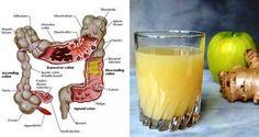 Tlusté střevo je jedním z nejužitečnějších orgánů v těle. Odpovídá za eliminaci toxinů a také pohlcuje vodu a sodík, aby udržoval hladiny elektrolytů stabilní. Pokud je jeho funkce poškozena, Vaše tělobude v důsledku trpět. Nesprávně fungující tlusté střevovede k nahromadění odpadu ve Vašem těle, cožmůže způsobit řadu problémů. Střeva zpracovávají více než 30 000 l …