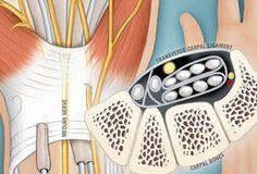 Slideshow: Visual Guide to Carpal Tunnel Syndrome