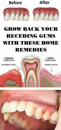 The home remedies will keep your gums healthy !!! Must Read – FIT/NSTANTLY