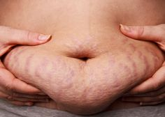 1 Weird Trick For Stretch Marks And Loose Belly Skin...can't hurt to try