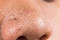See how to remove blackheads with baking soda. I showed 15 effective ways with baking soda and other home remedies that remove blackheads and treat acne. Blackhead Remedies, Blackhead Mask, Acne Remedies, Blackhead Remover, Natural Remedies, Baking Soda Scrub, Pele Natural, Natural Beauty, Types Of Acne