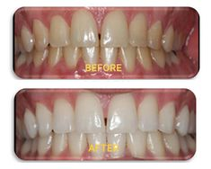 Contact to Somani's Orthodontic for Teeth Whitening in Ahmedabad