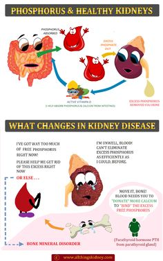 Phosphorus and the CKD Diet:Learn the necessary tips on Phosphorus-control in your Renal Diet (CKD) & upgrade to a Kidney-friendly lifestyle today! Study Skills, Study Tips, Human Kidney, Kidney Disease Symptoms, Healthy Kidneys, Bone Diseases, Renal Diet, Dialysis, Restoration