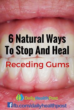 6 Natural Ways To Stop And Heal Receding Gums Before It's Too Late.Although it's always a good idea to go to the dentist a few times a year, there are a few natural things you can do to to keep your teeth healthy between appointments.