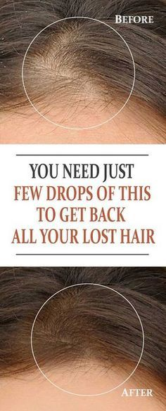 You Need Just Few Drops of THIS to Get Back All your Lost Hair Your hair is said to be your crowning glory, and it's normal to want to improve your hair if it's not to your satisfaction Hair Remedies For Growth, Hair Loss Remedies, Thinning Hair Remedies, Hair Loss Reasons, Hair Pack, Male Pattern Baldness, Hair Regrowth, Hair Health, Hair Oil