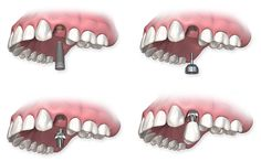 Dental Health: How to Know About a Dental Implant Procedure