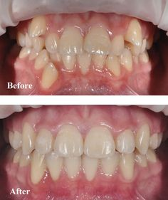 Orthodontics treatment done by Dr Nathan Le. This patient had 4 premolar teeth removed prior to braces for 15 months.