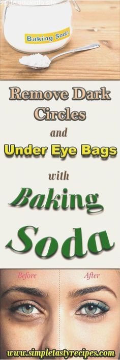 Remove Dark Circles And Under Eye Bags With Baking Soda Sodium bicarbonate normally called baking soda is an ingredient found in almost every kitchen and has ton of uses. Baking soda is frequently … Dry Eyes Causes, Natural Hair Loss Treatment, Oil For Hair Loss, Brittle Nails, Under Eye Bags, Hair Loss Shampoo, Puffy Eyes, Prevent Hair Loss, Dark Circles