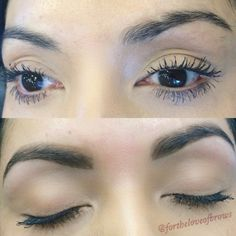 """Many of my clients have scars in the brow area. Given that hair does not grow over scar tissue, we must lightly shape and fill the brows with a little product to achieve symmetry. In this photo I used Anastasia Beverly Hills brow powder in """"Chocolate."""" My name is Marisa Rios and I'm a brow specialist located in Chandler, Arizona. Follow me on IG: @fortheloveofbrows"""