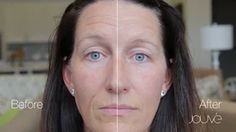 Jouvé Transformation - Woodson - Look Younger in 90 Seconds with Jouve Younger Looking Skin, Look Younger, Anti Aging Skin Care, Natural Health, Youtube, Hair Beauty, This Or That Questions, People, Opportunity
