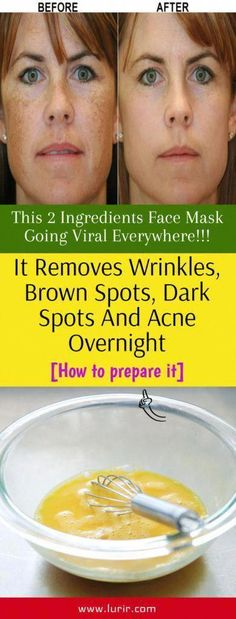 Sun Spots On Skin, Black Spots On Face, Brown Spots On Hands, Spots On Legs, Dark Spots, Spots On Forehead, Sunspots On Face, Baking Soda Shampoo