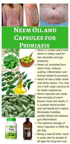 Psoriasis Diet - Neem is a powerful bitter plant herb for skin disorders and gut problems. Use of neem oil on psoriasis lesions and consuming neem capsules offer a safe and natural management of Psoriasis #NeemPsoriasis #Oilpsoriasis #herbspsoriasis #NeemSkin REAL PEOPLE. REAL RESULTS 160,000+ Psoriasis Free Customers #psoriasisskindisorder