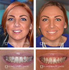 This is an AMAZING transformation! See the full video with all the Before&after . - Six Month Smiles Results - Before and After - Lingual Dental Braces, Teeth Braces, Best Weight Loss, Weight Loss Tips, Braces Transformation, After Braces, Invisible Braces, Teeth Straightening, Six Month
