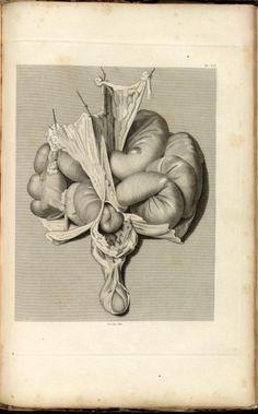 Inguinal hernia.