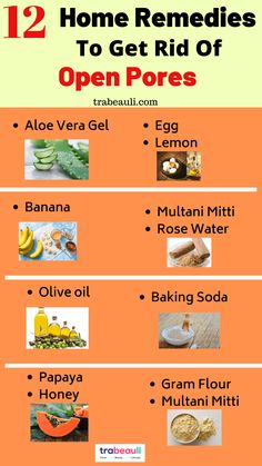 Looking for best natural treatment to get rid of open pores? if yes, so check out home remedies for open pores close at home Moisturizer For Oily Skin, Oily Skin Care, Anti Aging Skin Care, Natural Skin Care, Best Skin Care Regimen, Skin Care Tips, Open Pores On Face, How To Treat Acne, Tips Belleza