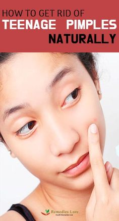 How To Get Rid Of Teenage Pimples Naturally