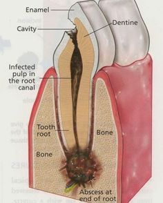 This is how the pulp can be infected in root canal @dentistry2day #dentistry2day Tag your friends #teeth#tooth#toothless#extraction#cirugiabucal#oralsurgery#dental#dentist#dentistry#dentalhygiene#dentalassistant#dentalschool#dentalstudent#dentalhygiene#implant#implants#odonto#odontogram#odontologo#odontolove#odontología#odontologia#odontogram#odontoporamor#estomatología#prosthesis#prosthodontics#restorative#impression#smile
