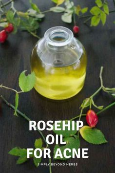 Packed with antioxidants and fatty acids, rosehip oil is a natural versatile moisturizer that will heal your hair, nails and skin from bruises, acne and wrinkles.