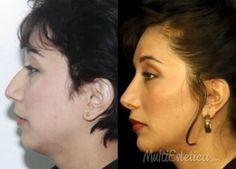 Operación de nariz http://www.multiestetica.com/estetica-rinoplastia-vsubservicios-741.html