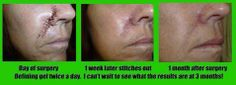 Look how great this scar healed with Itworks Defining gel!