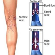 Best Natural Cure For Varicose Veins