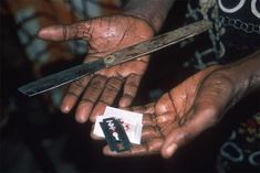 Showing tools used for female circumcision in Islam