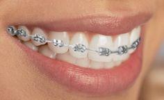 Customize your Braces   Braces Colors   Colored Elastics   Dovorany Orthodontics