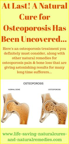 At Last! A Powerful Natural Cure for Osteoporosis... Natural Health Remedies, Natural Cures, Natural Healing, Osteoporosis Diet, Osteoporosis Exercises, Natural Cure For Arthritis, Bone Loss, Bone Health, Health