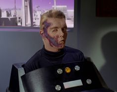 Captain Christopher Pike (Star Trek); that makeup really freaked me out when I was a kid.  Looked like the worst case of road burn ever...