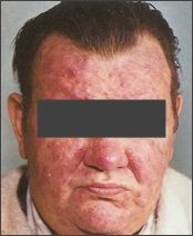 """A good Rosacea topical treatment can make all the difference to managing the often embarrassing symptoms that come with this chronic skin condition. You just need to find the one that is right for you – and that may depend on the type of rosacea that you have. First, let's define """"topical"""". This means something that is applied to the skin and only used externally – like a cream or a gel. There are three... FULL ARTICLE @ http://rosacea-skin-care.com/rosacea-topical-treatm..."""