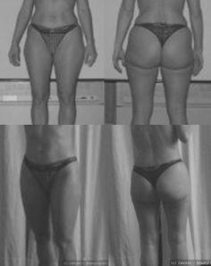 Persönlicher Erfahrungsbericht Fettabsaugung - mit Vorher-Nachher-Bildern http://mein-erfahrungsbericht.de/fettabsaugung/