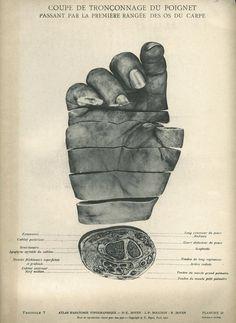 macabre anatomy illustration - Buscar con Google