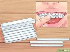 How to Alleviate Orthodontic Brace Pain. Orthodontic braces on your teeth are worth the effort in order to get straightened teeth, but the discomfort that you will likely experience from the braces can be discouraging and uncomfortable. Sore Tooth, Toothpaste For Sensitive Teeth, Braces Tips, Braces Pain, Mouth Sores, Mouthwash, Dentistry, 5 Ways, Pain Relief