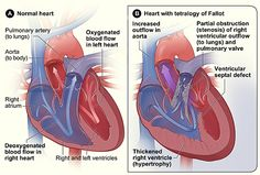 congenital heart defect Tetralogy of Fallot. This is what Tonys heart looked like before her open-heart surgery June 13,1996.