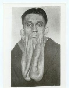 Arthur Loos,the rubber skinned man. His cheeks drop down  18 inch. At Chicago World Fair  in Believe It Or Not show.