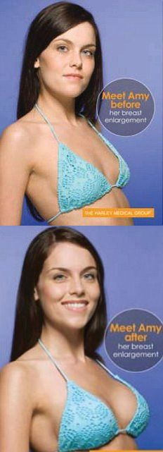 before enhancement Adult and after breast