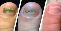 Elimine rapidamente qualquer fungo das unhas apenas aplicando isto!