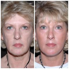 55 Year Old Before and After Face Lift Surgery - for enquiries please call 020 7486 6778 View patient testimonial with more photos and videos on our website #faceliftexperts #faceliftLondon #faceliftsurgery Facial Cosmetic Surgery, Skin Structure, Loose Skin, Rhinoplasty, Jawline, Laser Hair Removal, Cosmetics, London, Website